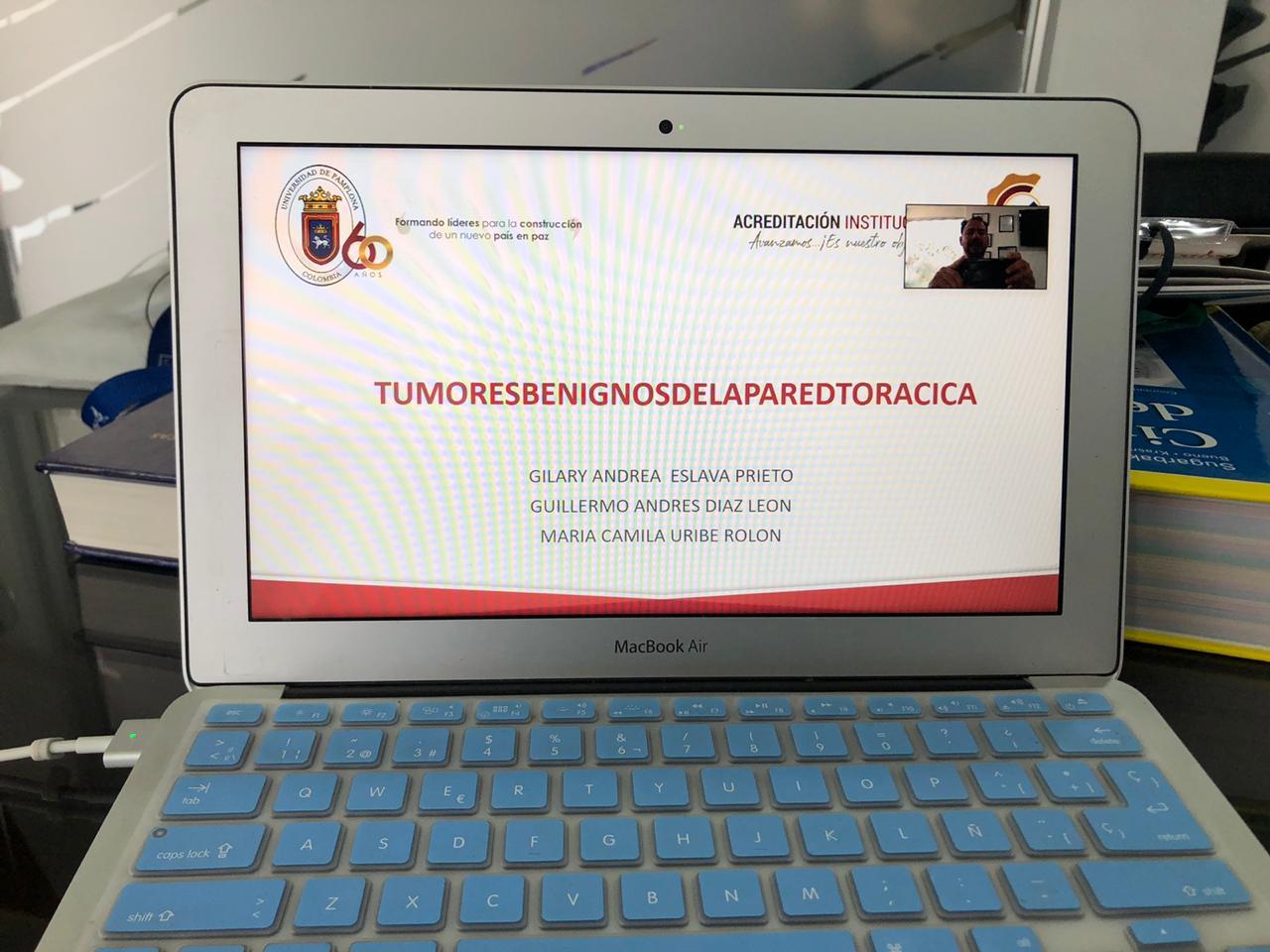"""""""TUMORES BENIGNOS DE PARED TORÁCICA """"Clase VIII SEMESTRE MEDICINA/UNIVERSIDAD DE PAMPLONA-29/05/2020"""