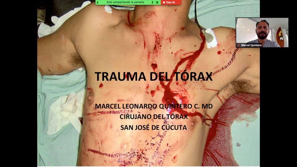 CLASE: TRAUMA DE TÓRAX, MEDICINA VIII SEMESTRE UPA, 14 agosto 2020.