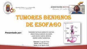 "SEMINARIO: ""TUMORES BENIGNOS DE ESÓFAGO: LEIOMIOMA"" Estudiantes VIII Semestre Medicina UPA. 21/08/2020"