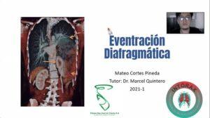 """PRESENTACIÓN: """"EVENTRACIÓN DIAGRAMÁTICA"""" Rotación Electiva Internado Clínica San José de Cúcuta, UNICORPAS. 26/02/2021 @intorax.cucuta @unicorpas @mattt.cp @clinicasanjosecuc"""